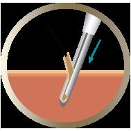 Paso 3 Implantación con técnica DHI