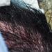 PRP: las letras que te devolverán tu pelo
