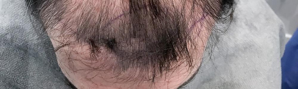 causas alopecia