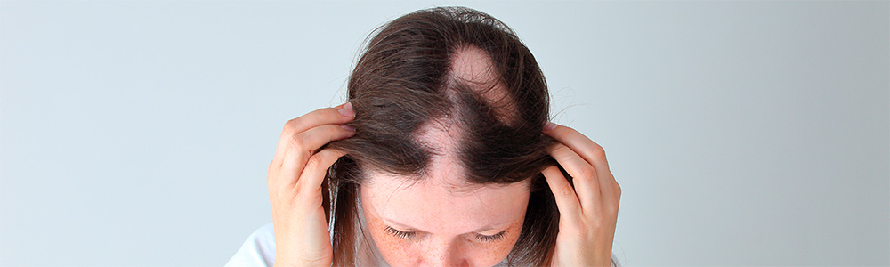 causa alopecia areata