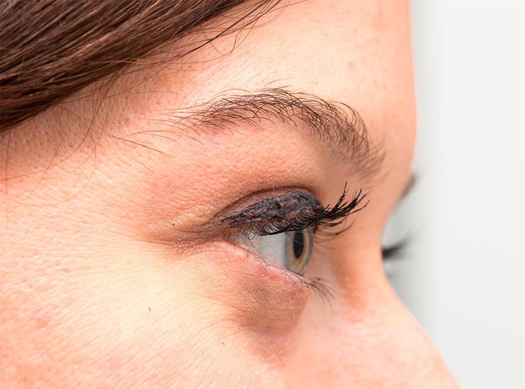 Tratamientos de ácido hialurónico ojeras