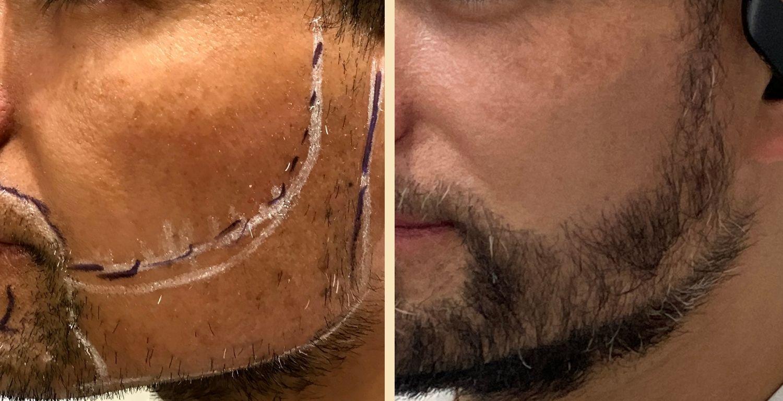 beard transplant
