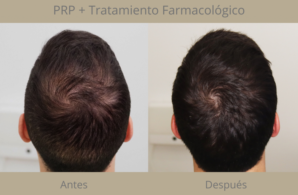 PRP + Tratamiento farmacológico