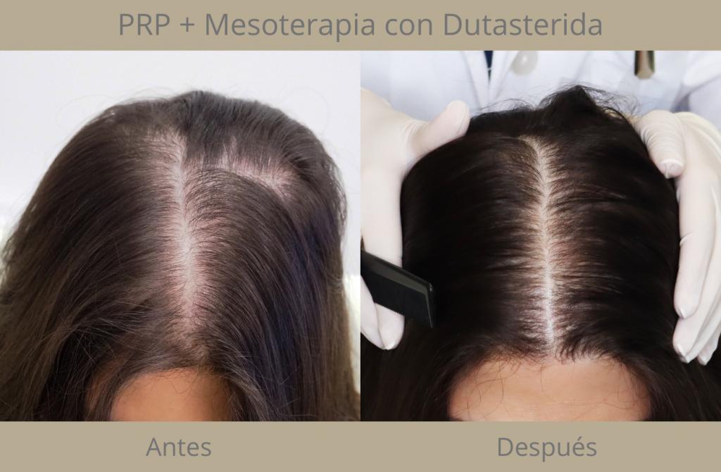 PRP + Mesoterapia con Dutasterida