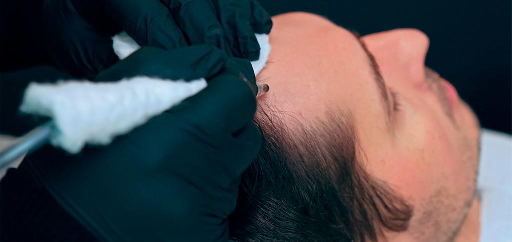 micropigmentación capilar tricopigmentacion Instituo Médido del Prado Madrid