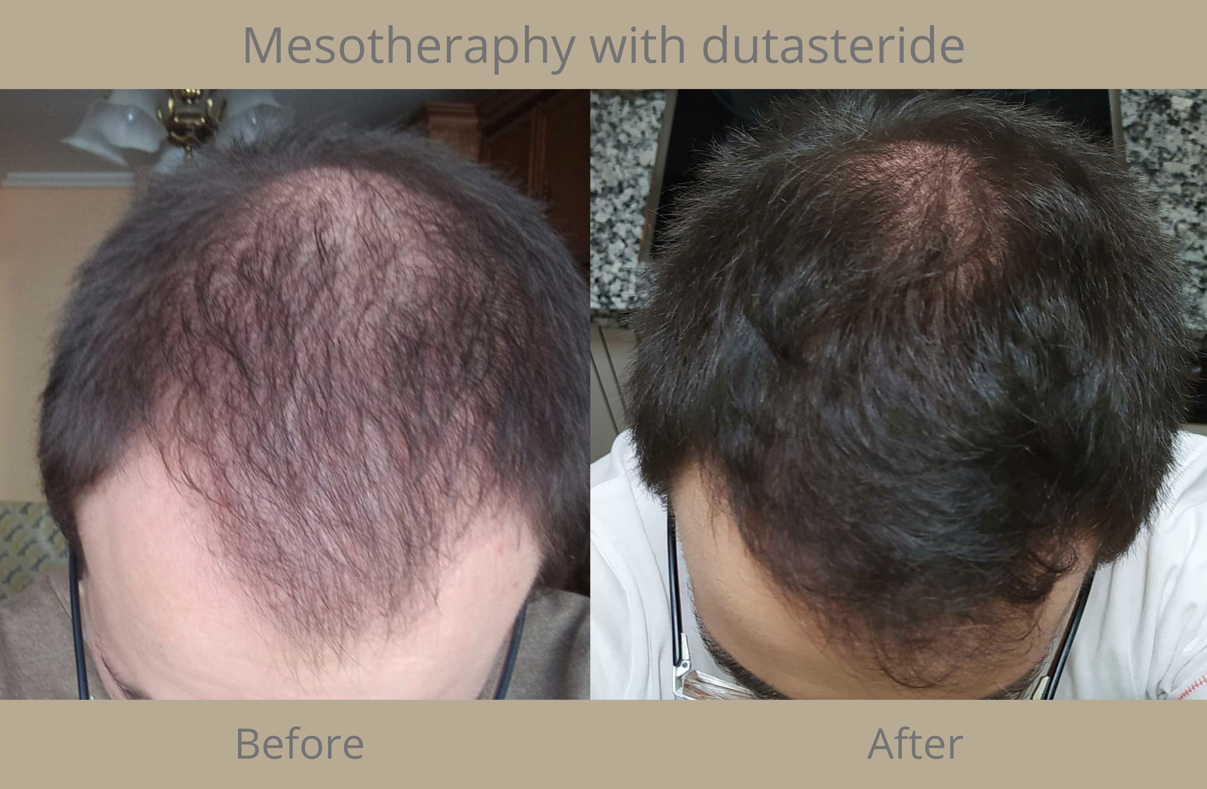 capillary mesotherapy with dutasteride