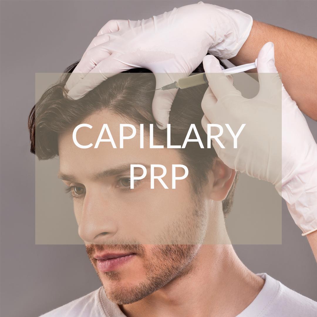 prp capillary madrid
