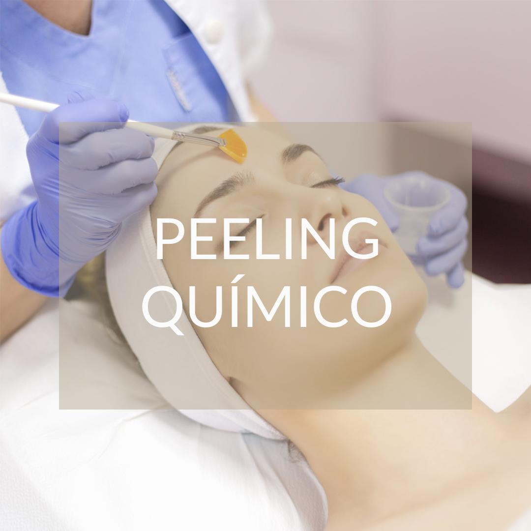 peeling quimico madrid