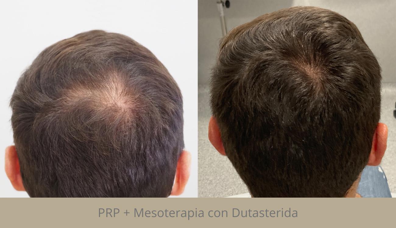 Mesoterapia capilar Madrid