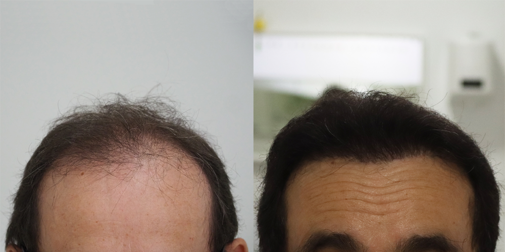 antes y después trasplante capilar